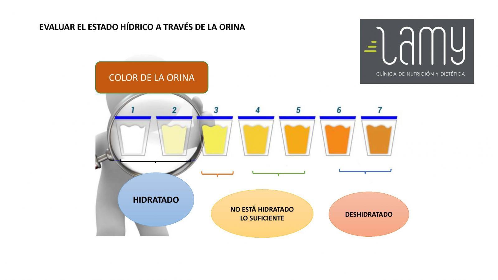 Dietista Nutricionista en Soria: ¿SABES SI ESTAS BIEN HIDRATADO?